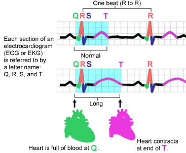 EKG Illustration